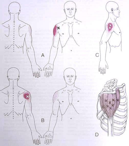 deltoid trigger points