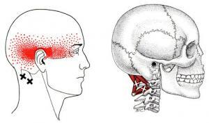 suboccipital headache pattern